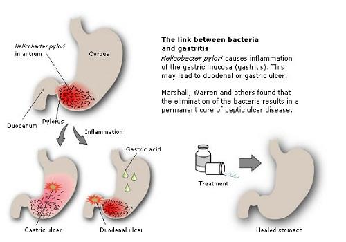 Penyakit Gastriks & Aloe Vera