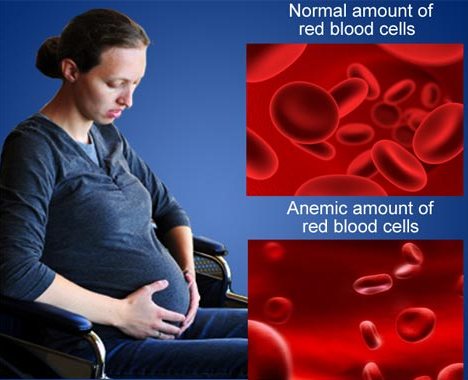 Tips Penyakit & Rawatan | Penyakit Kurang Darah Merah @ Anemia