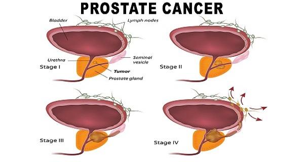 Kanser Prostat