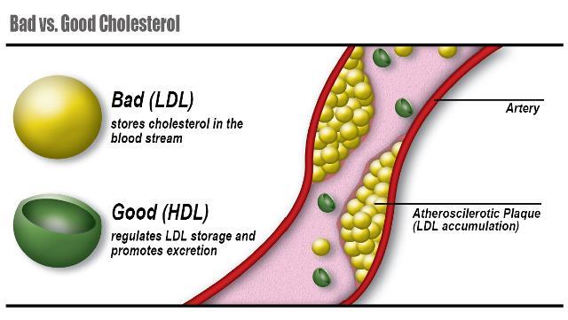 Kolesterol Baik Kolesterol Jahat