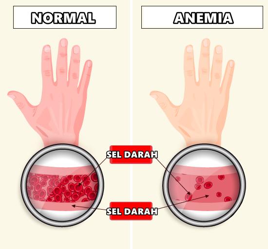 Penyakit Anemia Kurang Darah