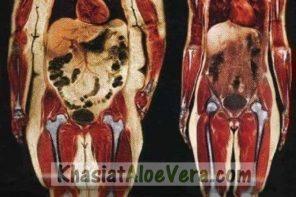 Masalah Kegemukan Melampau | Gambar Organ Dalaman & Struktur Tulang Orang Yang Obes / Gemuk Sangat Menakutkan!